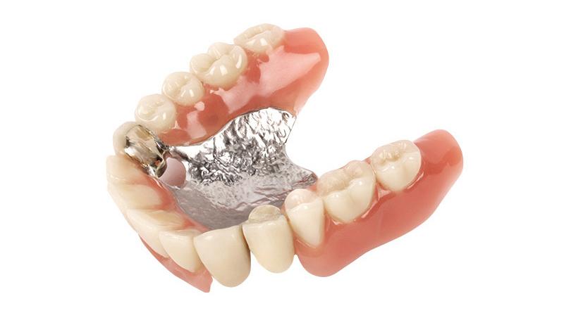 Raus nicht zahnprothese geht HILFE! Mein